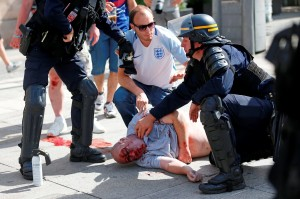An man injured in clashes is assisted by police officers in downtown Marseille, France, Saturday, June 11, 2016. Riot police have thrown tear gas canisters at soccer fans Saturday in Marseille's Old Port in a third straight day of violence in the city. (AP Photo/Darko Bandic)